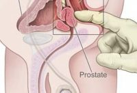 prostate massage barcelona